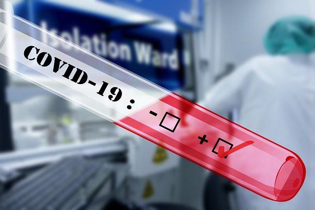 В ЮФО открыты центры для подтверждения тестов на COVID-19