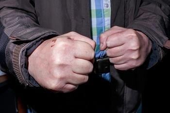 В Астрахани избит полицейский