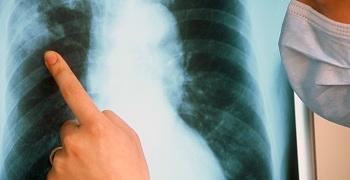 В три раза меньше стали умирать астраханцы от туберкулёза. К такой утешающей статистике мы шли 12 лет