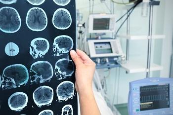 В Астраханской области растет число сложнейших нейрохирургических операций