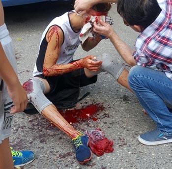 Астраханская автоледи сбила подростка и скрылась